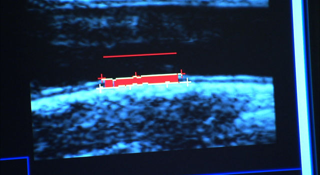 data from carotid artery ultrasound